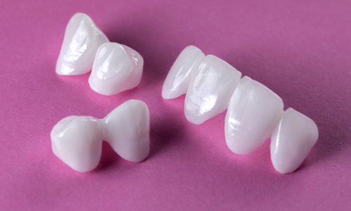 Zircon dentures on a pink background - Ceramic veneers - luminee