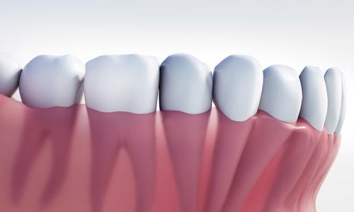 Zahnreihe mit Zahnfleisch